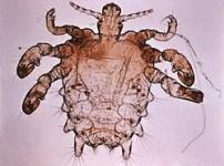 La ladilla (Pthirus pubis)
