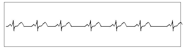 pulso arritmia respiratoria