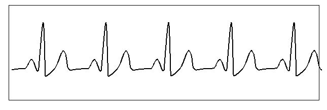 pulso normal