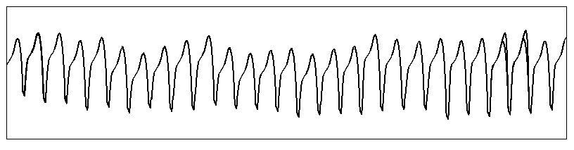 pulso taquicardia ventricular