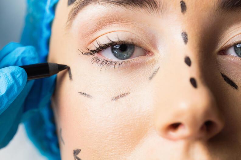 cirugia-rostro