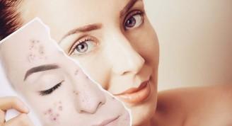 acne-1-750x375